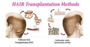 Hårtransplantasjon Metoder