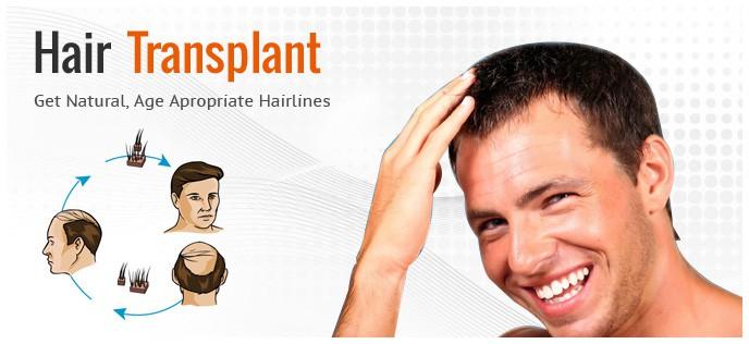 Hva resulterer i en effekt på hårtransplantasjonen