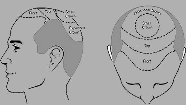 Hårtransplantasjon - er det en permanent beslutning om håravfall