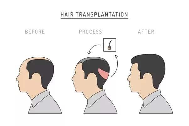 Hårtransplantasjon informasjon