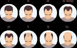 Hva er viktig etter hårtransplantasjon