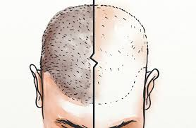 Hvorfor kan du ikke være egnet for hårtransplantasjoner