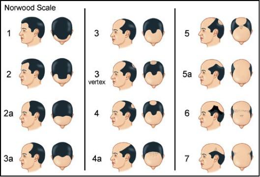 løsningen - hårtransplantasjon