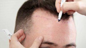 Hårtransplantasjon Effekt
