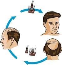 Hårtap Behandling Hårtransplantasjon