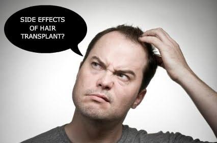 Hårtransplantasjon bivirkninger