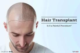 Er hårtransplantasjon smertefull